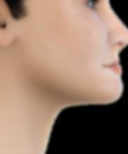 Class III soft tissue profile