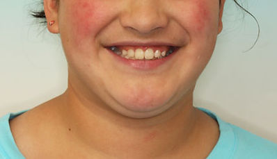 Case 3 - smile after orthodontic treatment