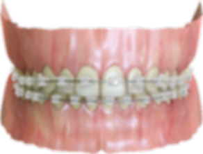 3D rendered image of clear ceramic orthodontic braces
