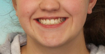 Case 1 - smile after orthodontic treatment