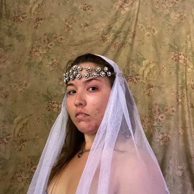 psoriasis princess