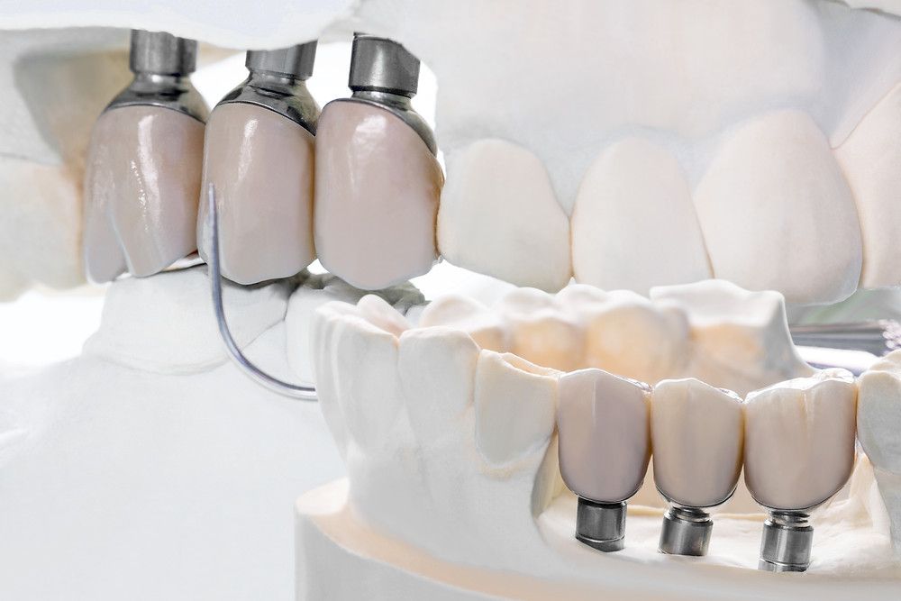 imagem demonstrando como funciona um implante dentário