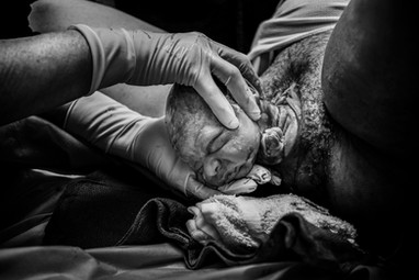 Nucal hand