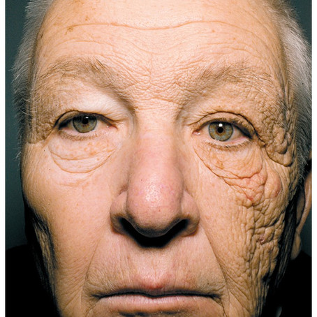 Skin damage and ageing