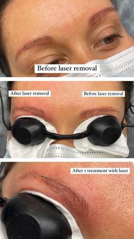 PMU laser removal
