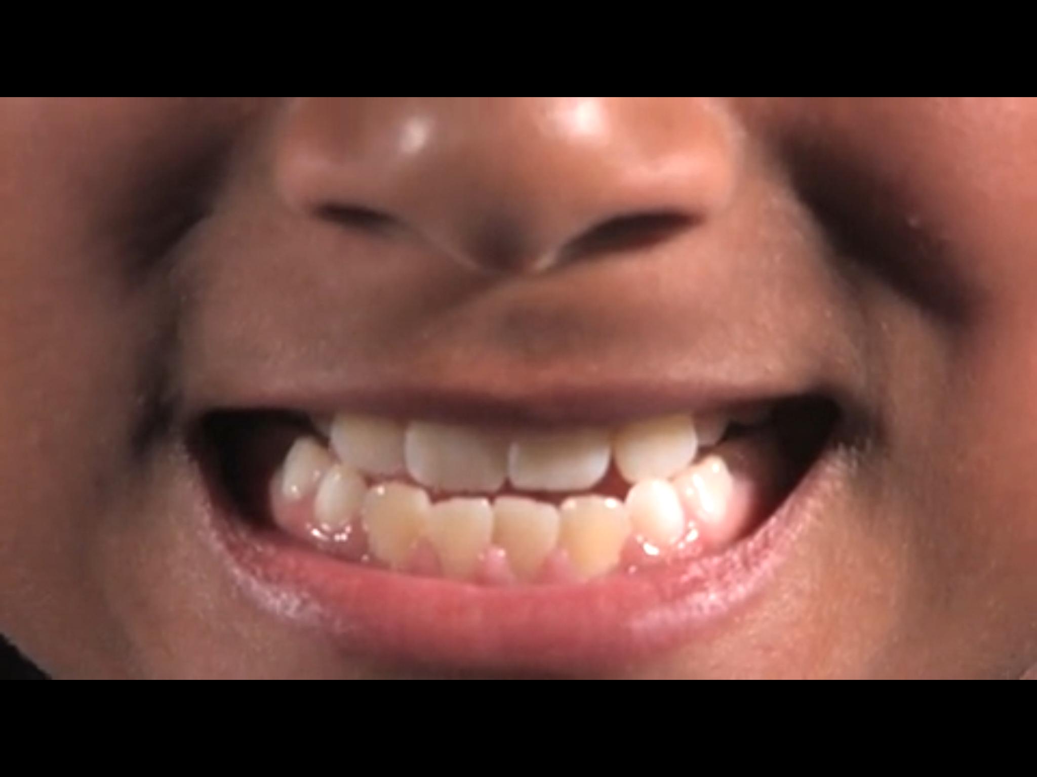 boy_teeth