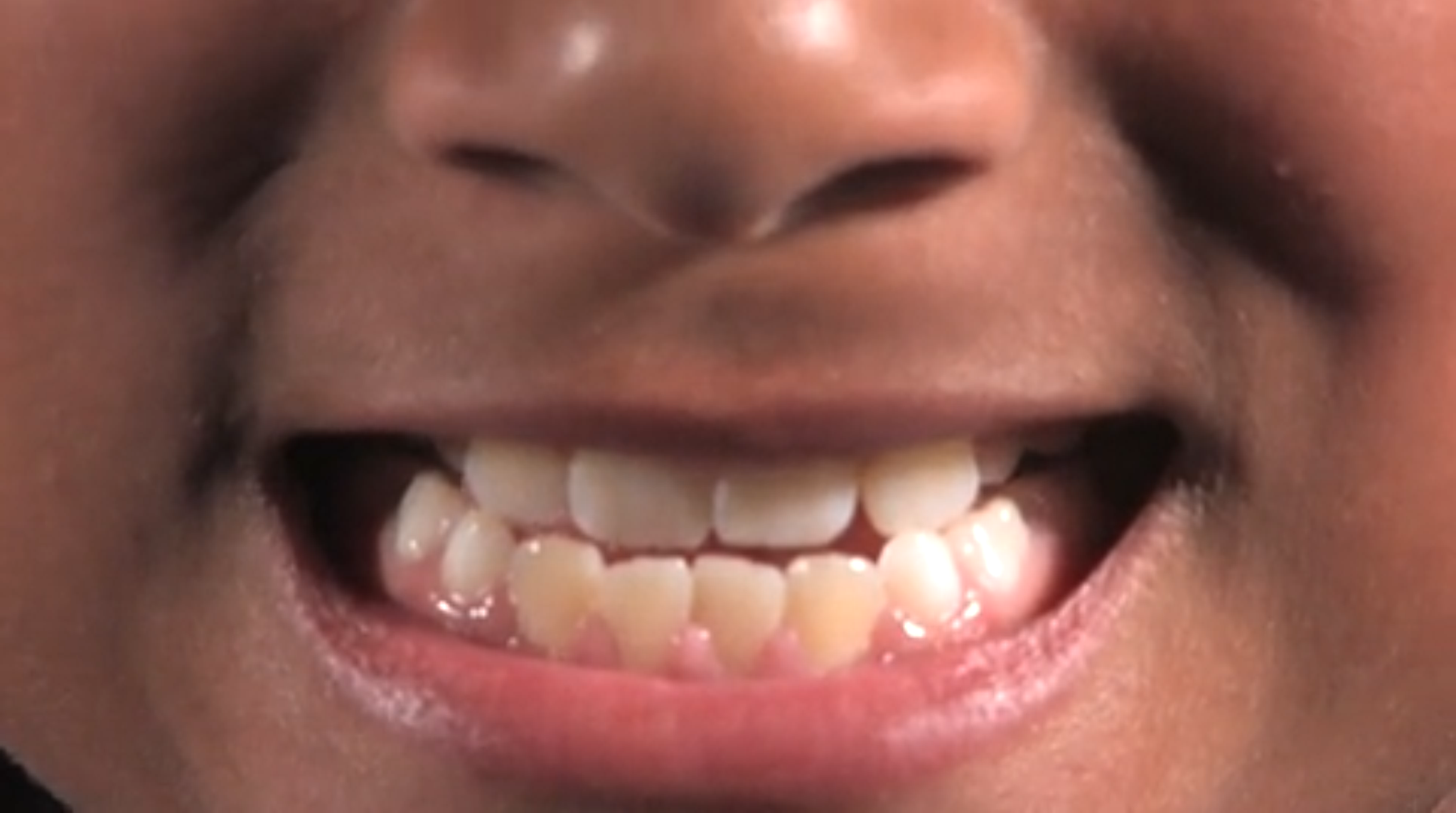 child_mouth_smile