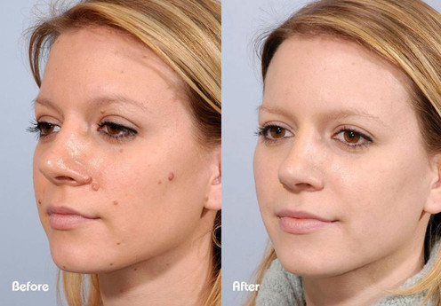 Skin Tag Face - Beau Synergy Ltd.jpg