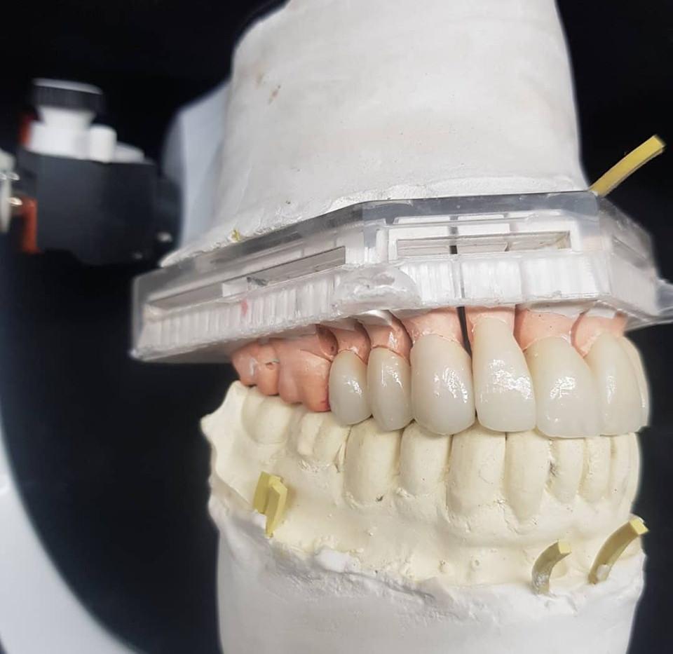 Reabilitação Dental