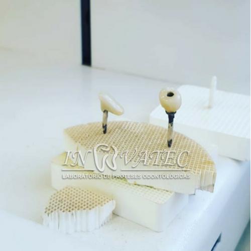 prótese sobre implante metalo cerâmi