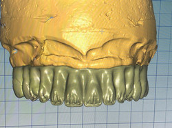 Protocolo Zircônia Monolítica 3D