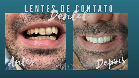 Lentes de Contato Dental.png