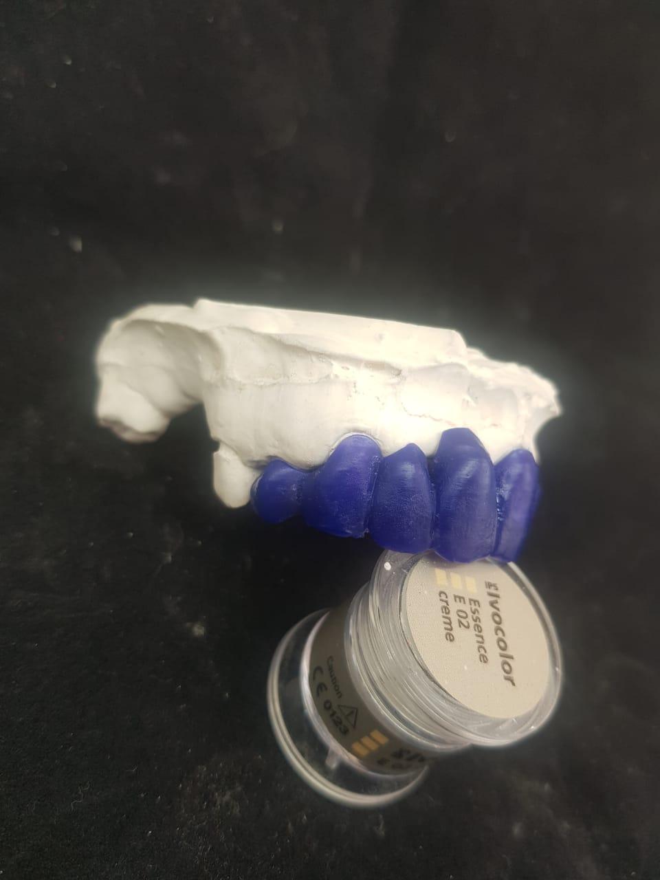 Facetas fluxo digital em resina