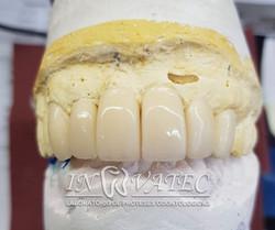 Prótese Dentária Provisória