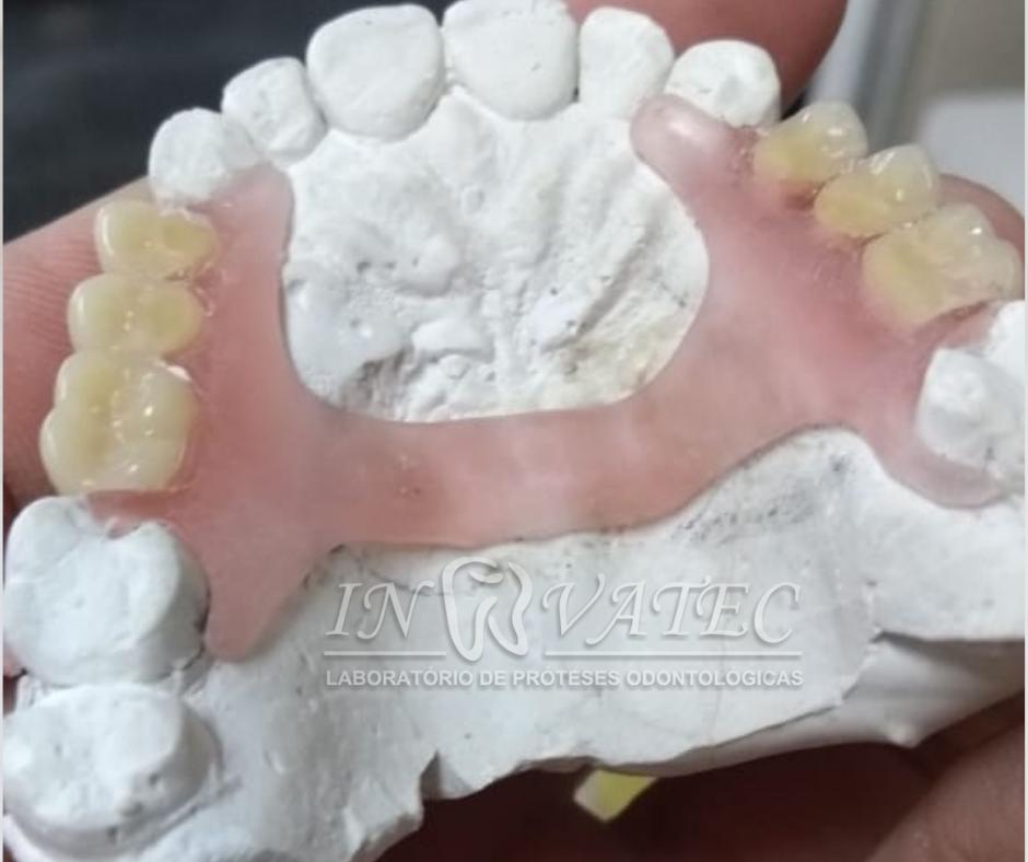 prótese parcial Flexivel