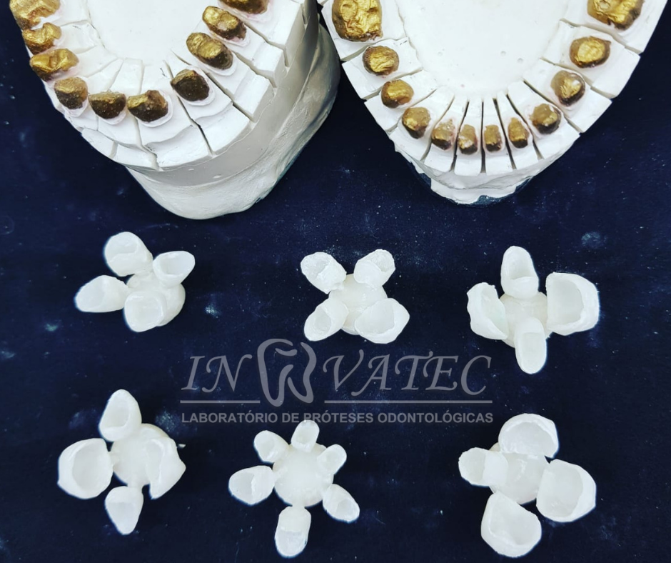 coroas de porcelana cetra press