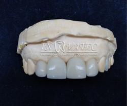lentes de contato em cerâmica celtra