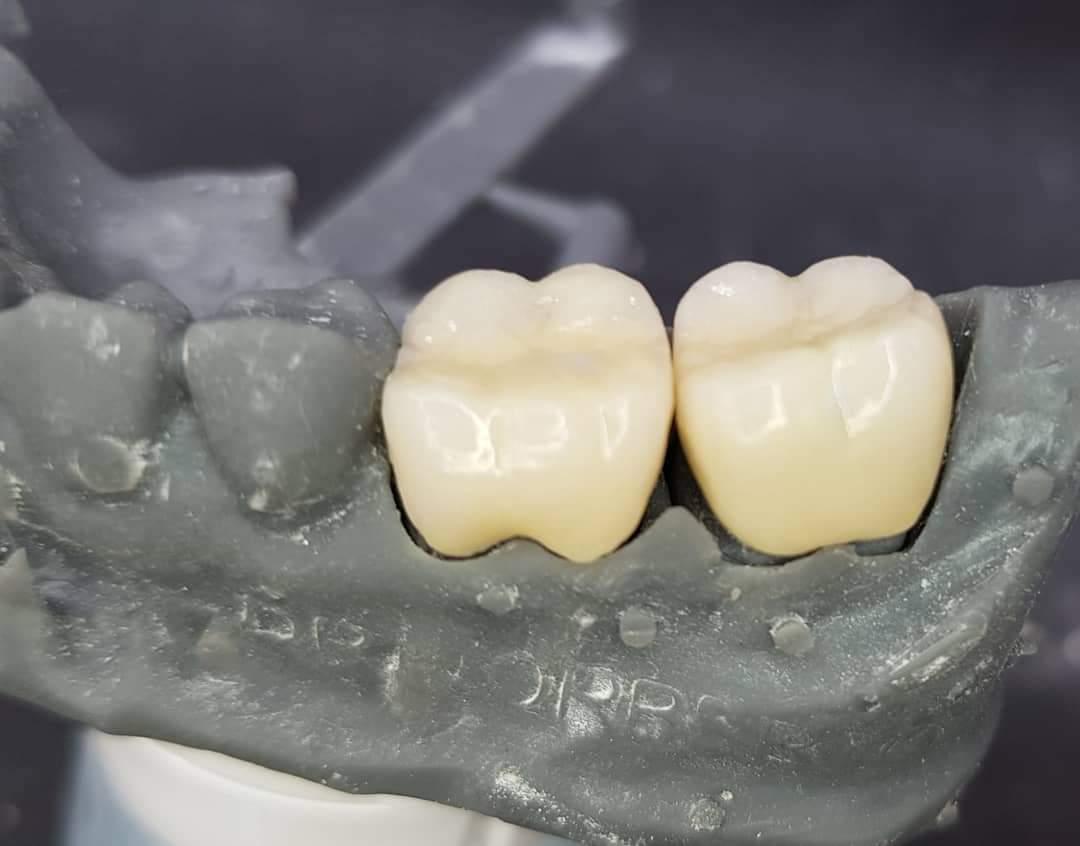 Coroas em E-MAX estratificado 3D