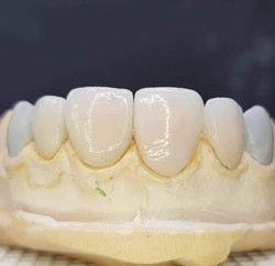 Lentes de Contato Dental 3D