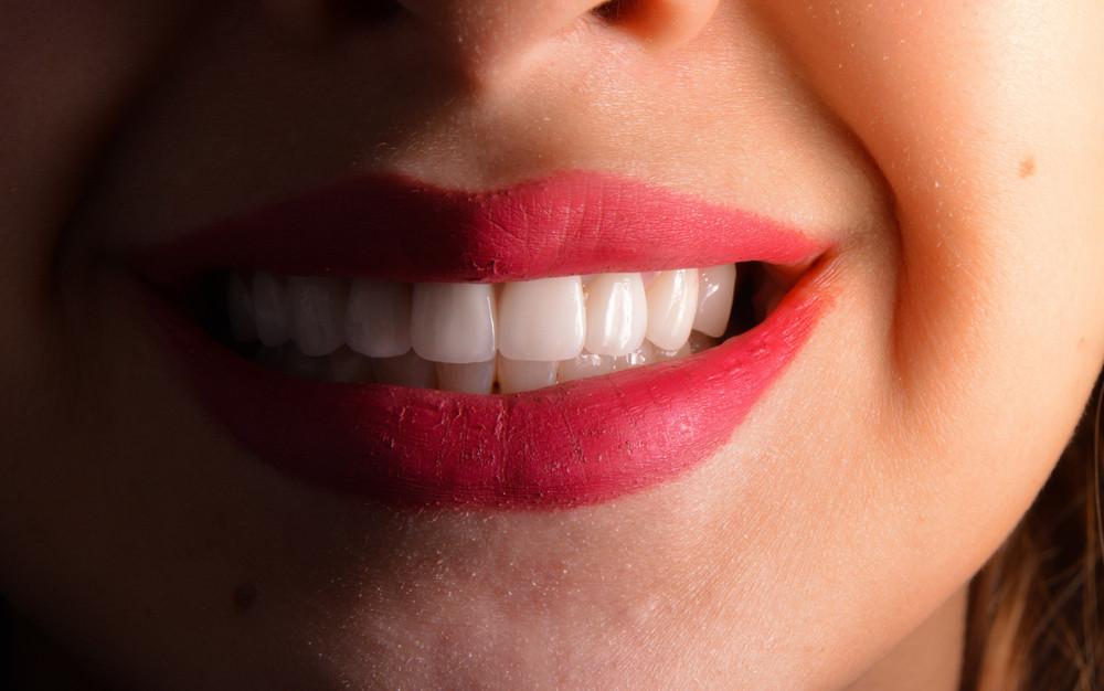 veneers-smile-teeth-tooth-dental-perfect-cosmetic-dentist