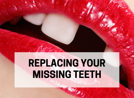 3 Options for Replacing Missing Teeth