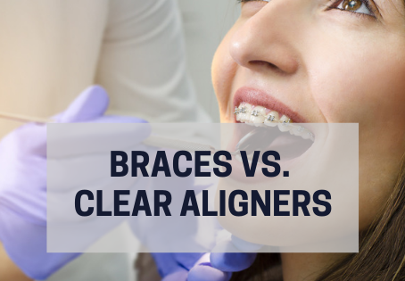 Braces vs. Clear Aligners