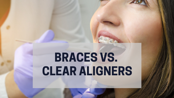 braces clear aligners invisalign orthodontics dentist