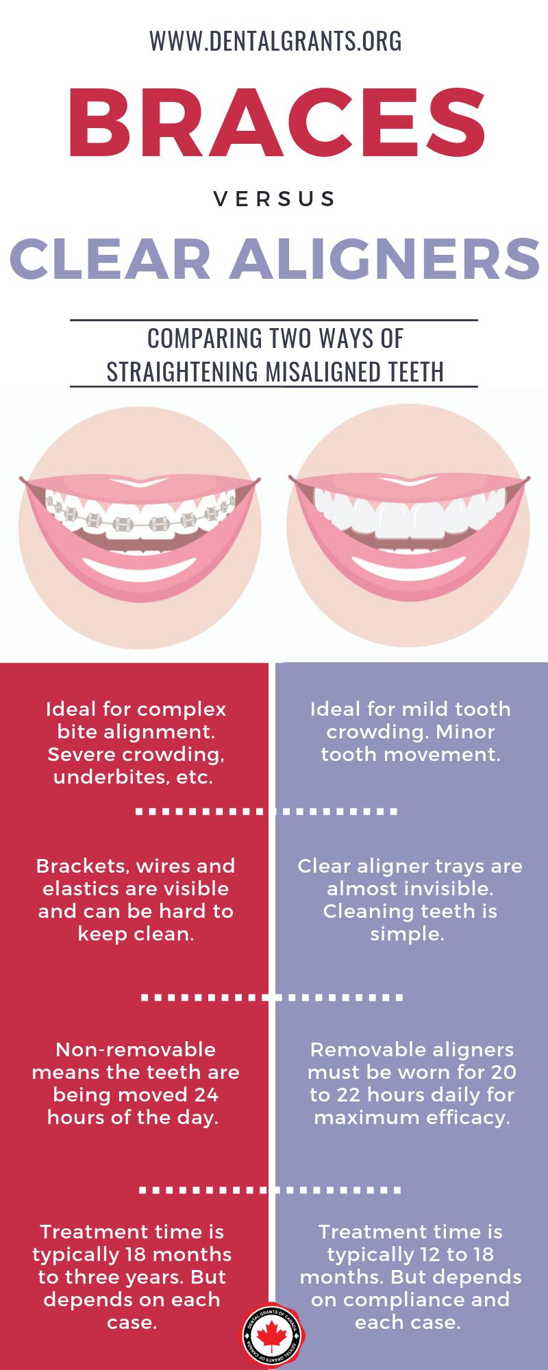 braces orthodontics versus vs clear aligners invisalign dentist orthodontics information