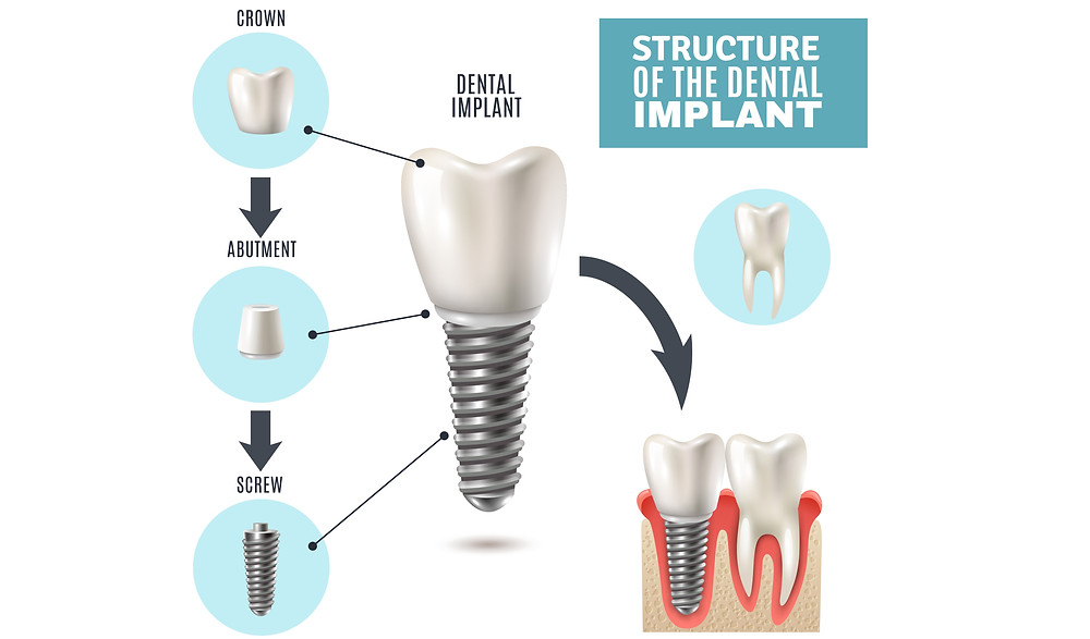dental-implant-stucture-anatomy-crown-screw-abutment-teeth-dentist-surgery