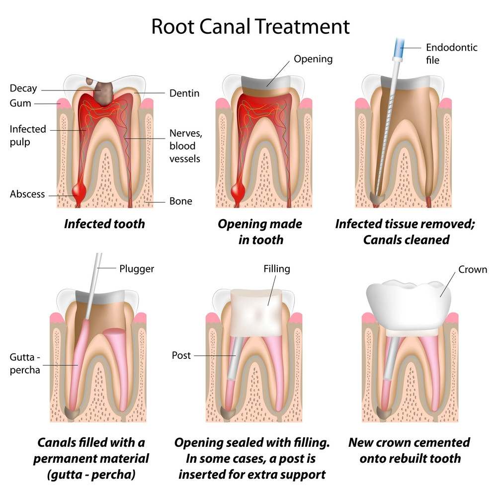 root-canal-treatment-therapy-endodontic-infection-crown-teeth-dentistry