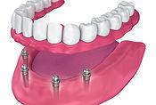 Dental Grants - All-on-Four