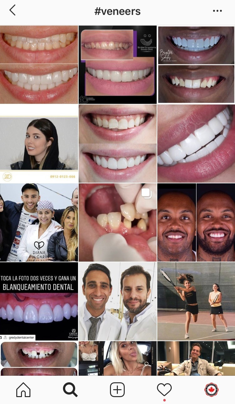 veneers-instagram-feed-social-media-teeth-dentist