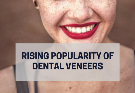 How did veneers become so popular?