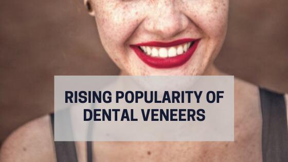 veneers-perfect-teeth-hollywood-smile-dentist-dental-popular-instagram-model