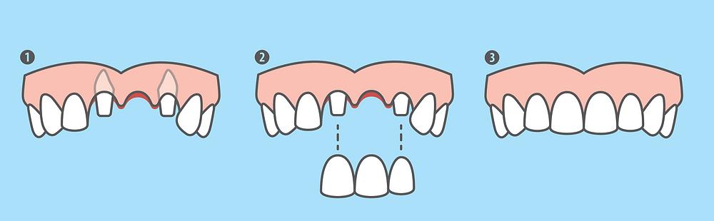 dental-bridge-teeth-tooth-missing-replace-dentist