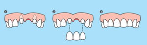 dental-bridge-teeth-tooth-missing-replace-dentist