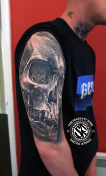 Skull healed