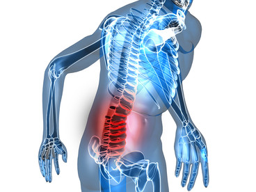 MANAGING BACK PAIN
