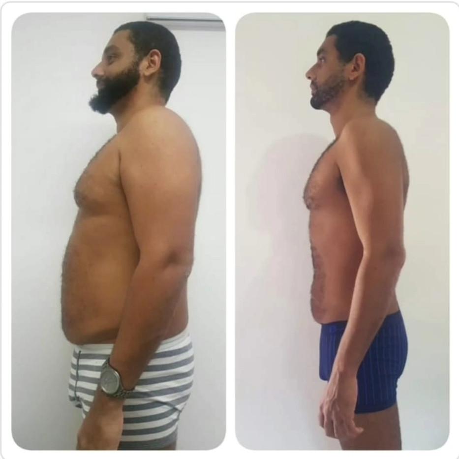 4 meses de tratamento