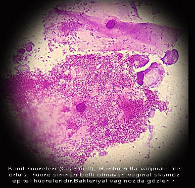 Vaginal Gardnerella Bacteria