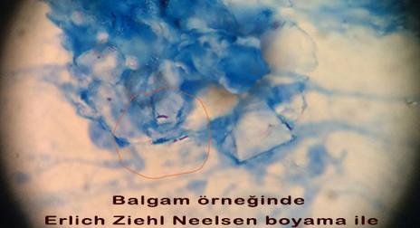 Tuberculosis Basil (Marked)