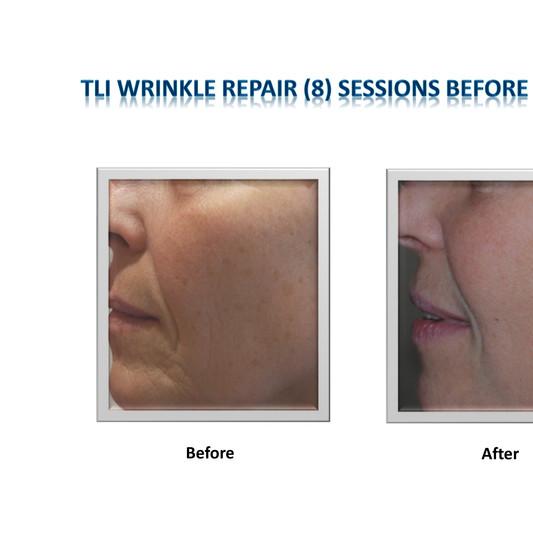 Wrinkle Repair Result Pic.jpg