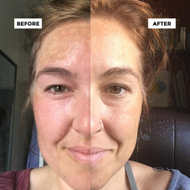 This is Post 1 Follow Up Peel with Andrea and commiting to Jenette's Be Calm Brightening C Serum for a month!