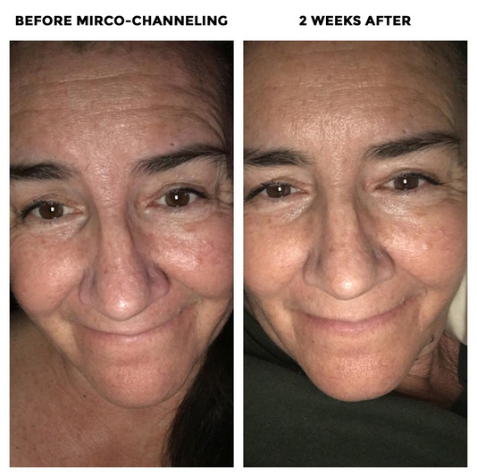 This is a before and after of Irene's 2nd MC channeling session with Andrea.  We hope to find a photo of Irene's skin from a year ago before she started her journey here at being in LA.  The texture of her skin has dramatically improved, her pores are smaller, skin brighter and the lines have softened tremendously around her eyes and forehead.  Way to commit Irene!!
