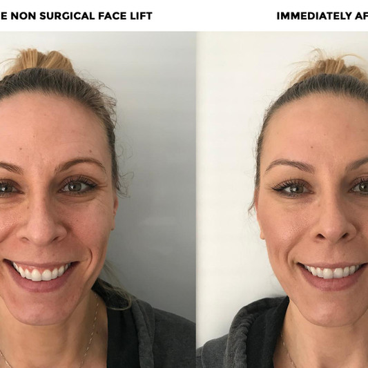 This is Rachael right before her Non Surgical Facelift w Jenette. 1 hour later, look at this beautiful flawless skin!!