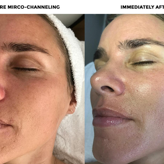 How amazing, after 1 MC session Jaci's skin was brighter, smoother and more lifted!!