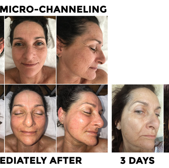 Cynthia came in with deep scars, hyperpigmentation and some overall aging skin.  After her 1st MC session, her skin transformed over the course of a week!!  She also commited to her daily Jenette skin care regimen;)