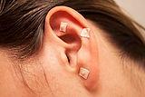 auricular-acupuncture-1.jpg