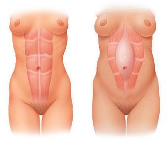 Diastasis-Recti-Example.jpg