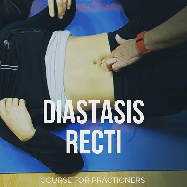 DIASTASIS RECTI MYTHS